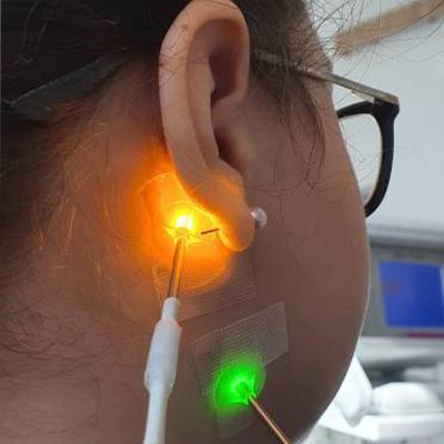 Stimularea punctelor de acupunctura cu un laser de joasă frecvență
