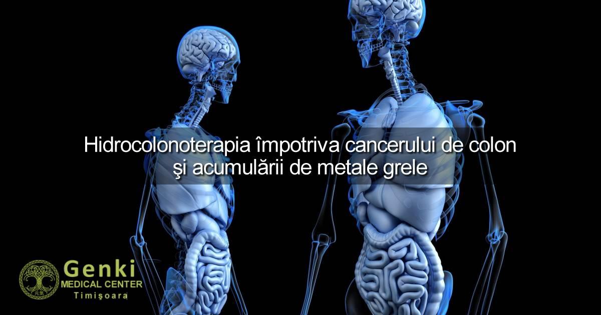 Hidrocolonoterapia; cancerul de colon și acumularea de metale grele